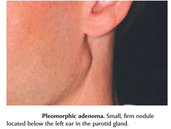 pleomorphic adenoma surgery name